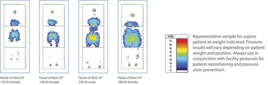hill-rom-accumax-quantum-vpc-mattress-8